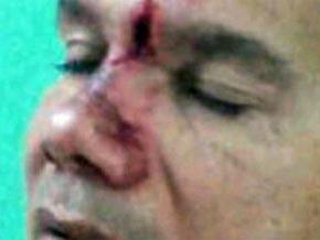 Intentan asesinar a Jhonny Alberto Salazar