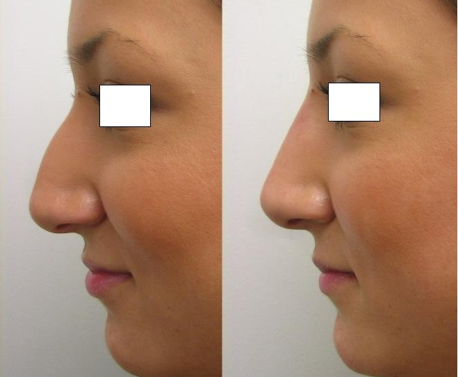 how to fix your nose without surgery