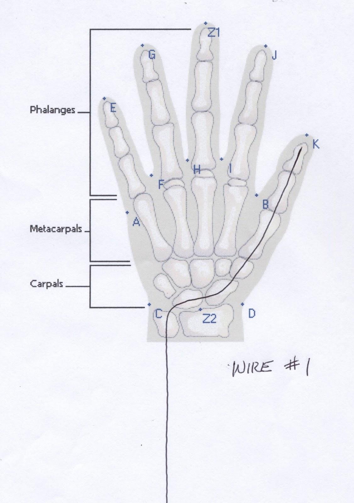 Wire #1 diagram