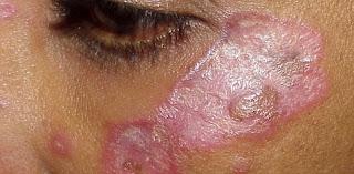 diskoidni lupus eritematodes erythematosus kožne promjene