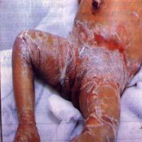tricotiodistrofia