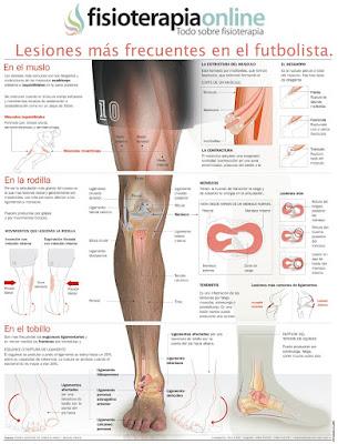 http://www.fisioterapia-online.com/sites/default/files/infografias/78-lesiones_futbolista.jpg