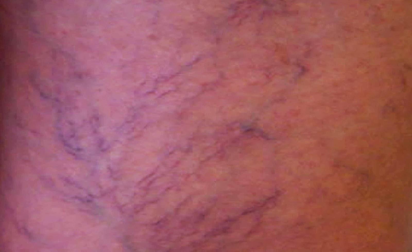 vasinhos, teleangiectasias, escleroterapia, laser