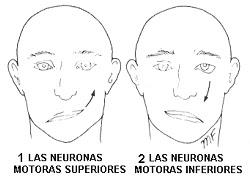 Nervio facial de la neurona motora inferior