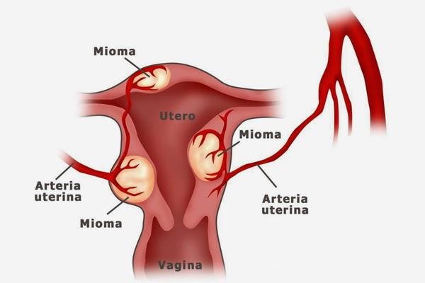 penyebab kepala janin belum masuk ke rongga panggul pada usia kehamilan 38 minggu