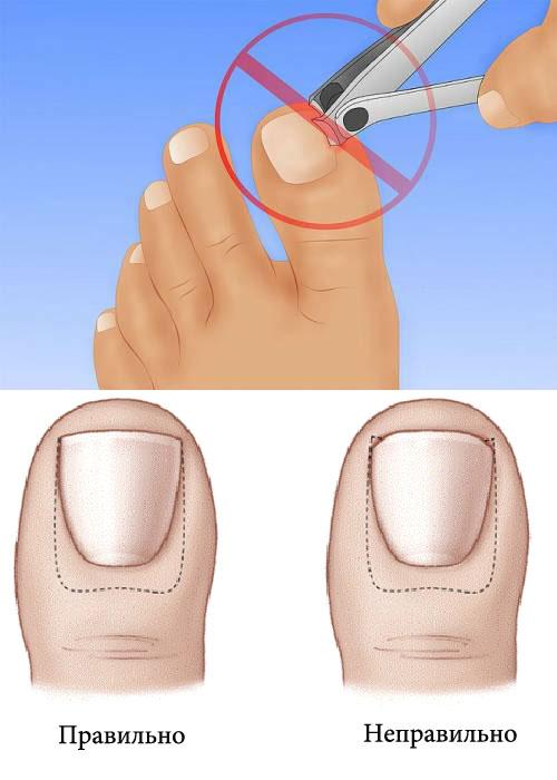 Ногти врастают на ногах
