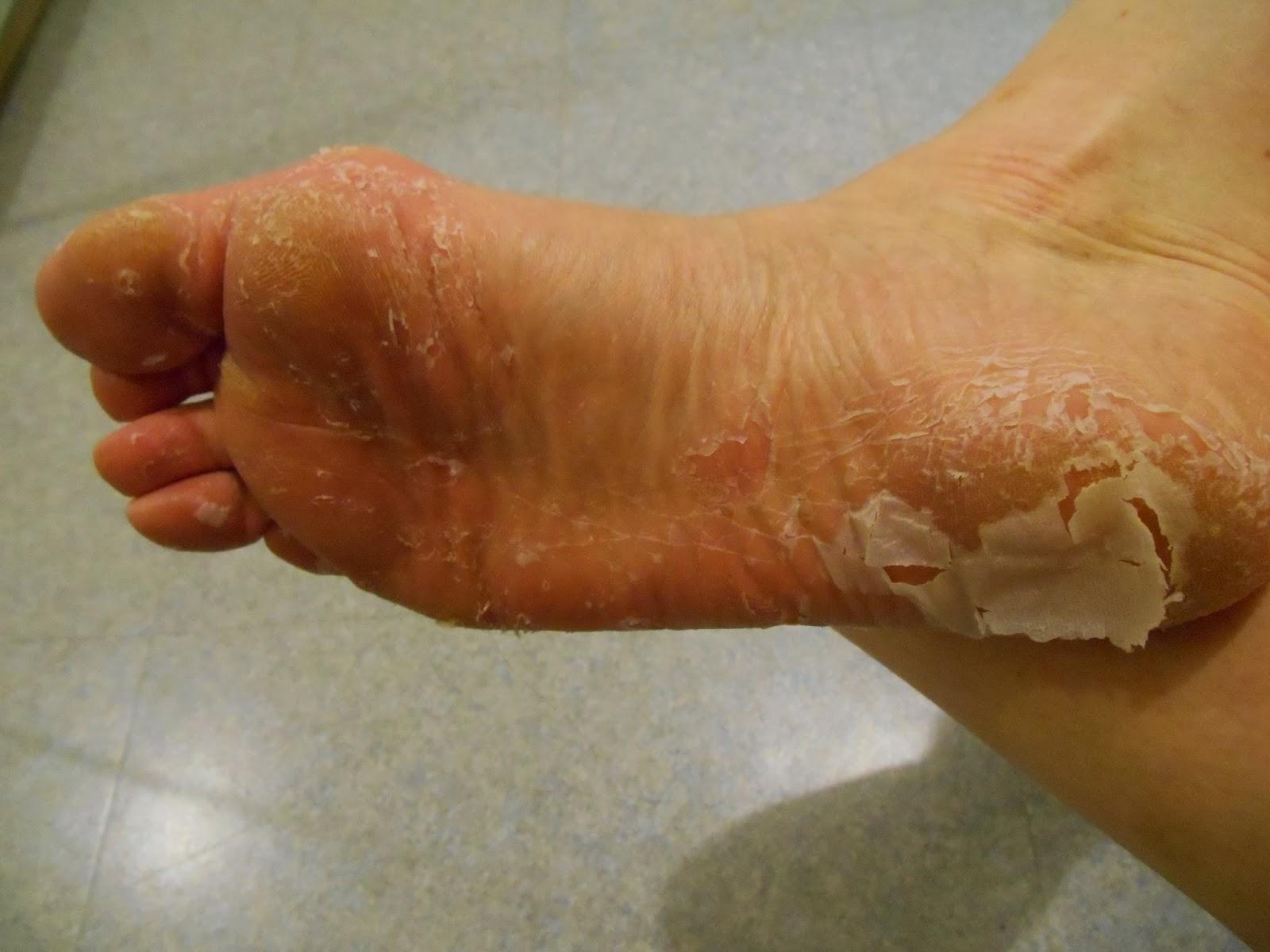 Vos mains pelent voici des remedes efficaces pour for Parquet qui craque sous les pieds