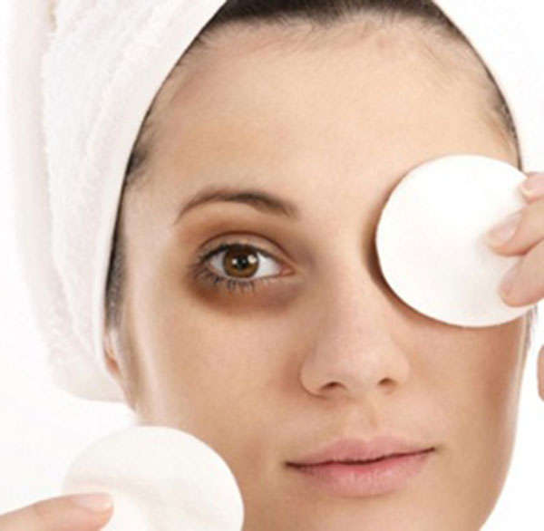 how to get of dark circles around eyes