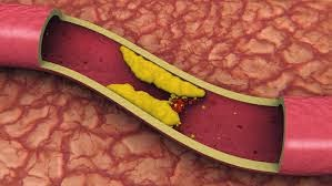 Ini 4 Tanda Fisik Kolesterol Darah Anda Sedang Tinggi