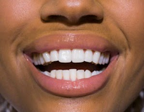 how to get healthy teeth and gums naturally
