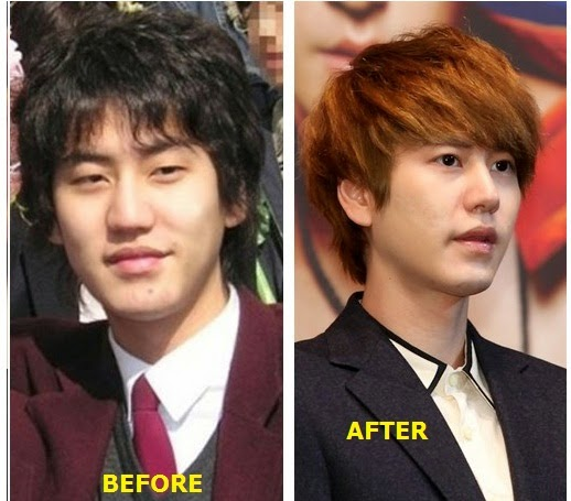 cho kyuhyun before and after plastic surgery