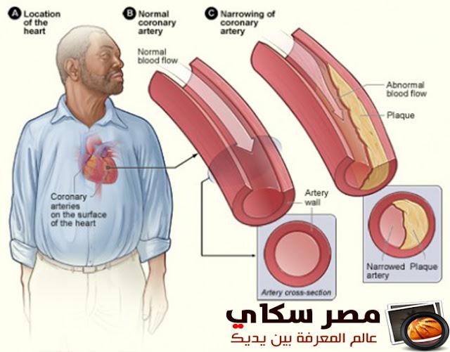 الكوليسترول وعلاجه بالوسائل الطبيعية