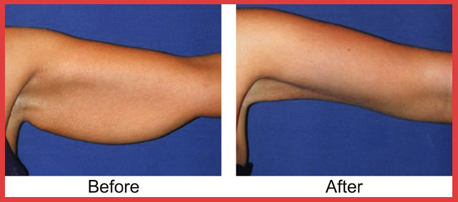 Scars From Upper Arm Lifts : Plastic surgery before and after arm lift