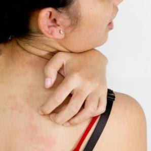 Skin Rashes and Itching