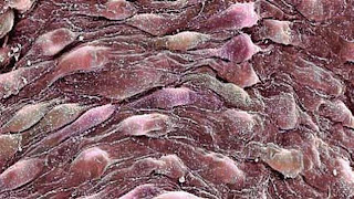 vena bioartificial con células madre
