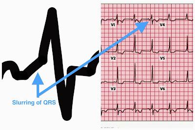 Delta Wave Explained Wolff Parkinson White - ECG