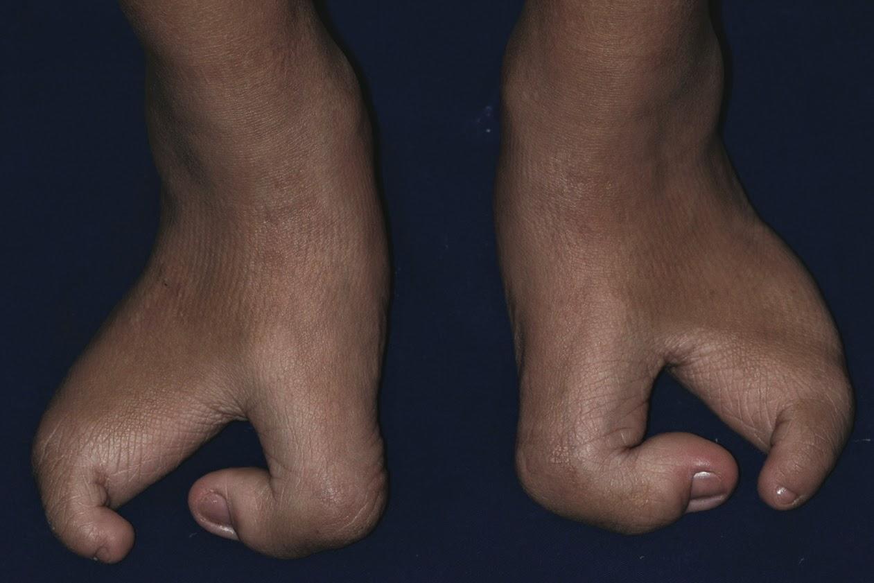 Split-hand/split-foot malformation (SHFM): Ectrodactyly, a ...