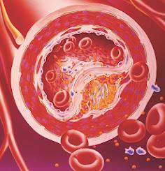obat penurun kolesterol herbal