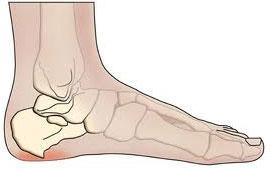 heelspur symptoms