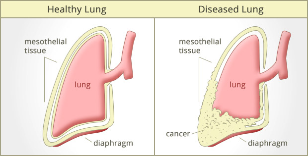 """malignant \""""mesothelioma cancer\"""" what is mesothelioma cancer? howmesothelioma cancer affected lungs"""