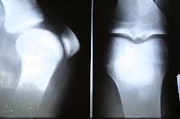 my knee surgery