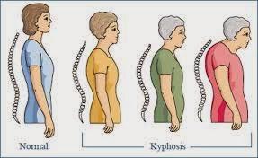 Tulang Bungkuk Akibat Osteoporosis
