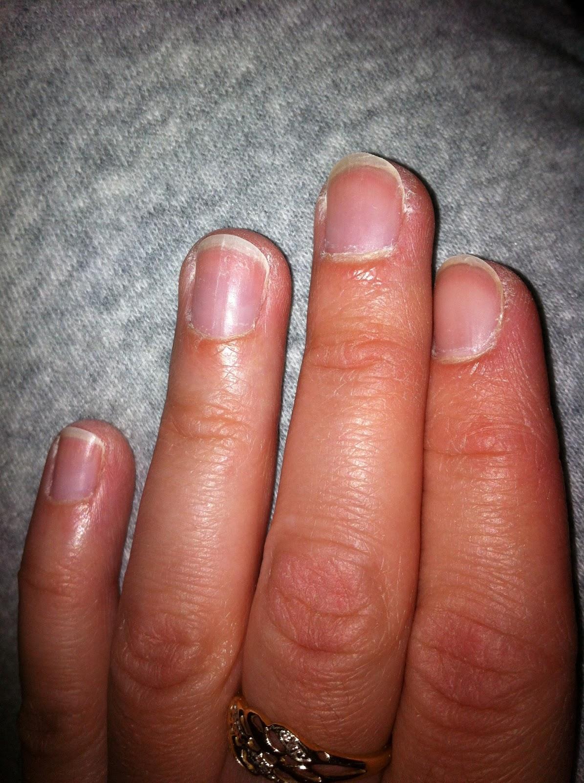 trasiga nagelband orsak