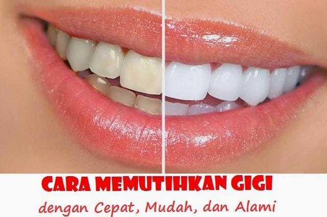 Cara Memutihkan Gigi Dengan Cepat Mudah Dan Alami Ini Cara Alami
