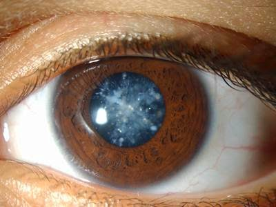 Tips Penjagaan Mata Selepas Pembedahan Katarak