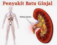 Cara Menyembuhkan Penyakit Batu Ginjal
