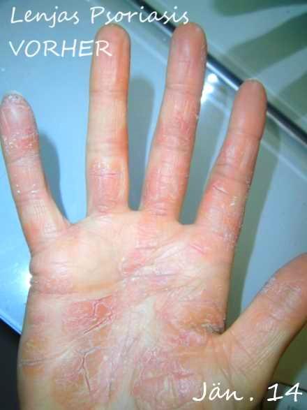 Seit 13 Jahren habe ich Psoriasis an den Hnden und Fssen 2