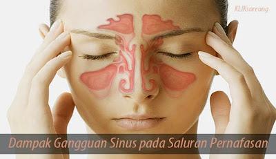 Dampak Gangguan Sinus pada Saluran Pernafasan
