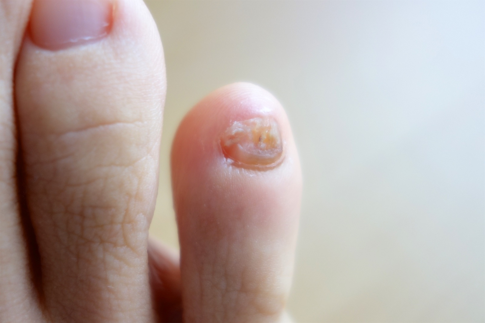 爪水虫 薬 クレナフィン