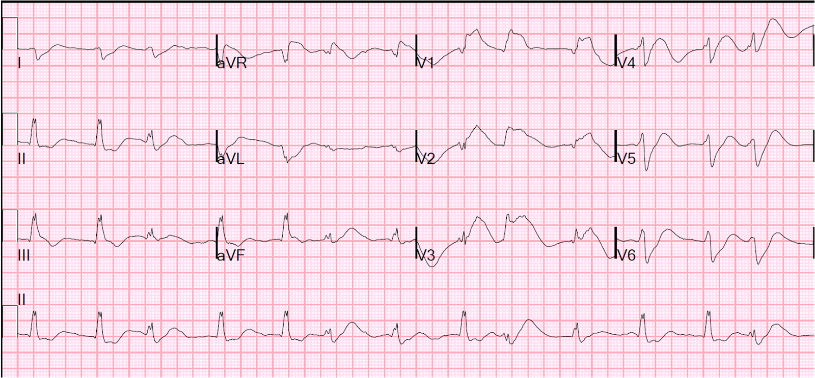 how to tell is an ecg is right