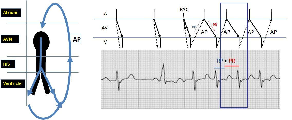 Ecg Rhythms  Orthodromic Av Reentry Tachycardia