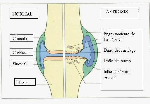 artritis reumatoide avanzada