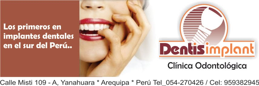 Clinica Dentis Implant