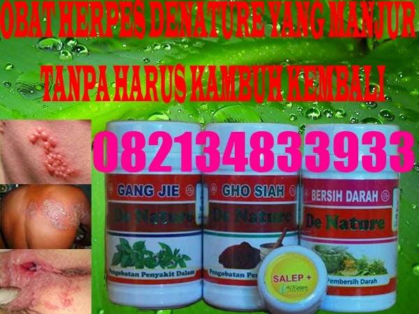 Obat Herpes Simplex 1
