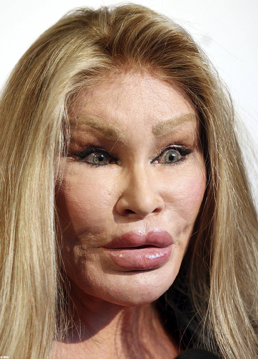 12 Celebrities And Their Addictions! | Jocelyn Wildenstein