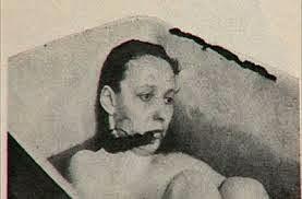 historia de psicosis esquizofrenia
