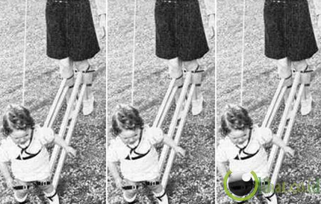 Penopang Kaki Bayi (1939)
