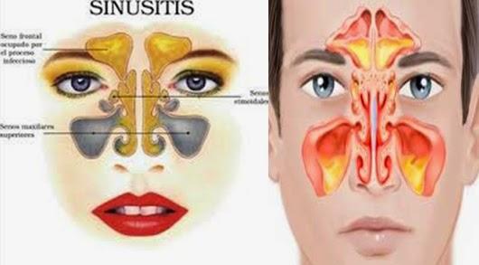 Pengobatan Tradisional Sinusitis Kronis Tanpa Operasi