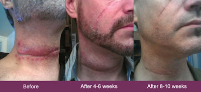mederma before and after neck scar from accident