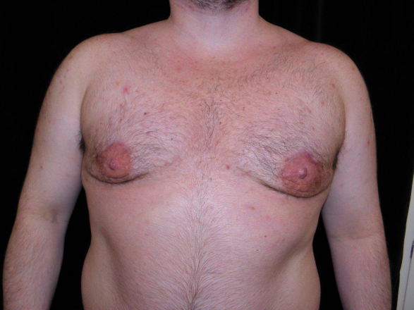 Adolescent Gynecomastia Surgery Done as a One Stage Procedure""