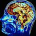 La música ayuda a la recuperación de daños cerebrales
