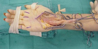 Riesgos Cirugía De Túnel Carpiano