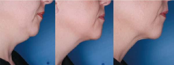 ATX-101研究用於縮減雙下巴