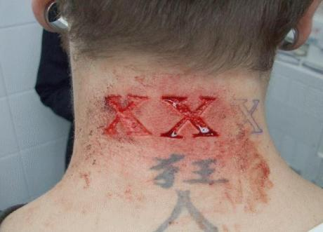 Triple X Scar Tattoo