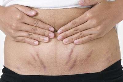 Red and white stretch marks: home remedies to mitigate them