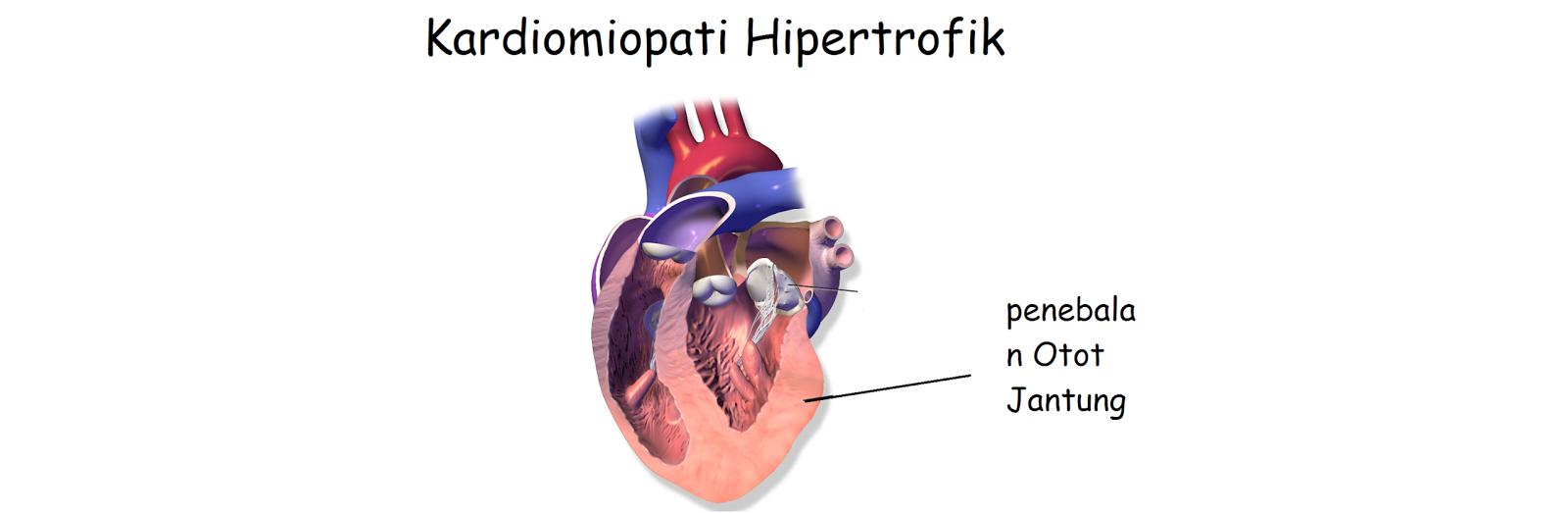 Gejala Penyebab dan cara mengatasi Kardiomiopati Hipertrofik